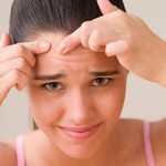 Acne-Remedies-For-Pimples